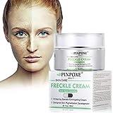 Whitening Cream, Anti blemish, Sommersprossen Creme, Frecken creme, Gesicht creme gegen Altersflecken/Dunkle Flecken, mit kojic Acid, Vitamin C, 30 ml