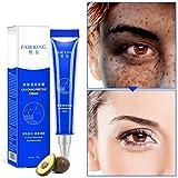 Allbestaye Whitening Cream Gesicht Freckles Removal Cream Dunkle Flecken Creme gegen Pigmentflecken Altersflecken Hyperpigmentierung